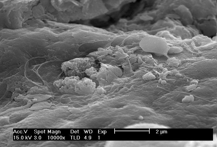 Dia6 for Soil under microscope
