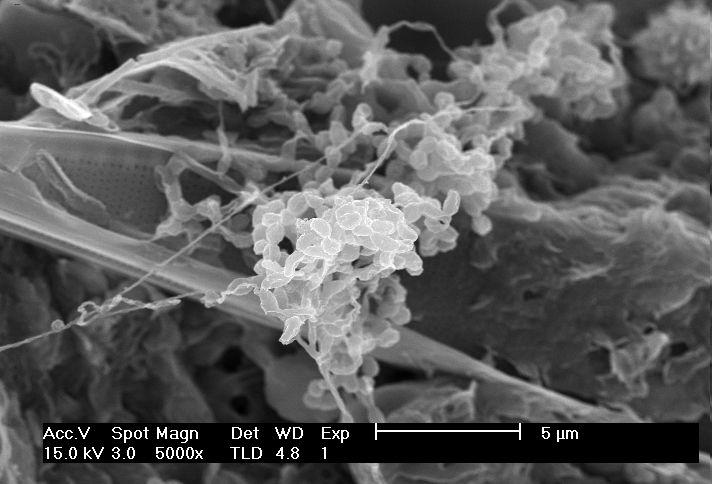 Dia1 for Soil under microscope