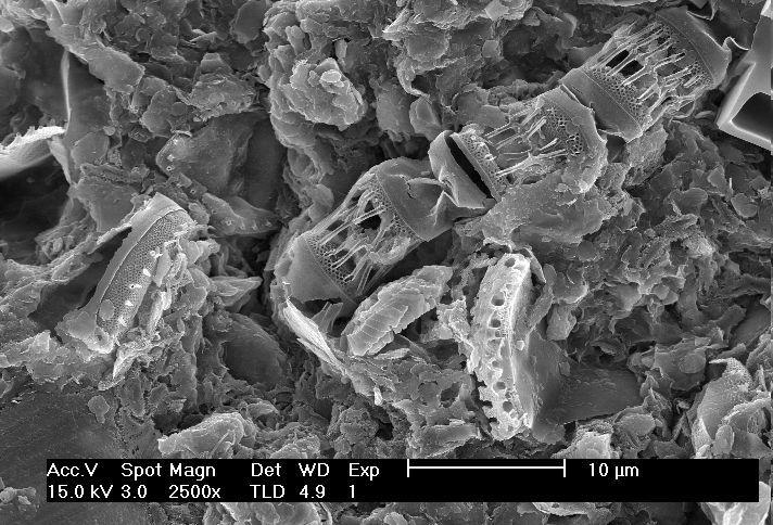 Dia2 for Soil under microscope